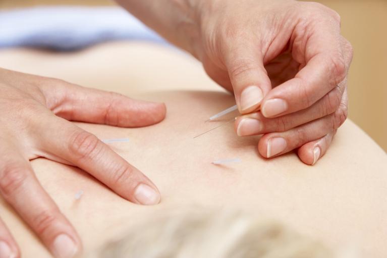 当院の鍼施術について